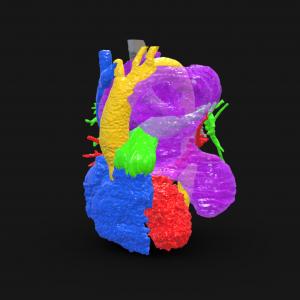 Complex Mediastinal Tumor