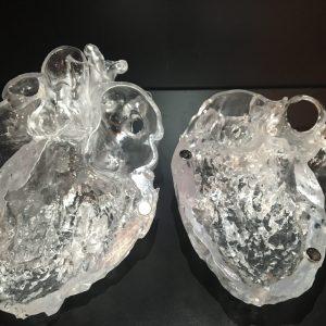 Human heart. Long-axis slice. Cardiac CT. SLA Print.