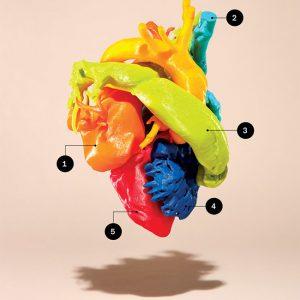 Toronto Heart Atlas Complex TGA; Situs inversus; Dextrocardia. Post insertion of RV to PA conduit. Cardiac CT. FDM Print.