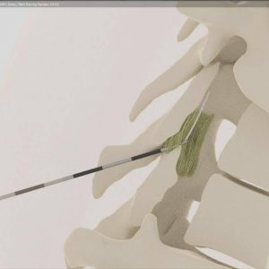 Thoracic epidural insertionCT. Educational Animation.