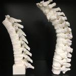 Spine models for development of neuraxial anesthesia phantomCT. FDM Print.