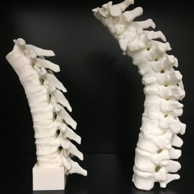 3D printed spine models from CT for neuraxial access task trainer
