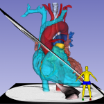 Rendering of the long-axis cut plane for echoanimated rendering for teaching echo anatomy Cardiac CT. 3D Slicer