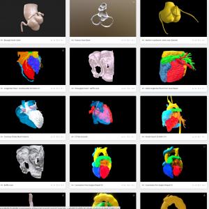 Toronto Heart AtlasCardiac CT + 3D TEE. Interactive renderings.