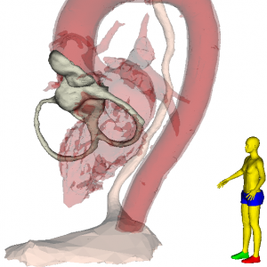 Heart Base and Left Heart Blood Pool Cardiac CT. Animated Rendering. 3D Slicer.