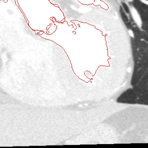 Left Heart Blood PoolCardiac CT segmentation. ITK-Snap.