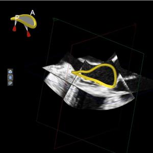Mitral valve annulus model3D TEE data.