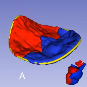 Mitral Valve Model 3D TEE. 3D Slicer.