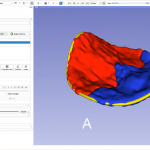 Analysis of 3D ultrasound dataset of the mitral valve: 3D Slicer