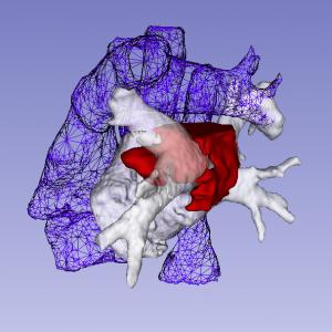 Cardiacl tumor surgical planning model Interactive rendering of 3D digital model. 3D Slicer. ITK-Snap.